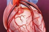 Секс шунтирование сердца