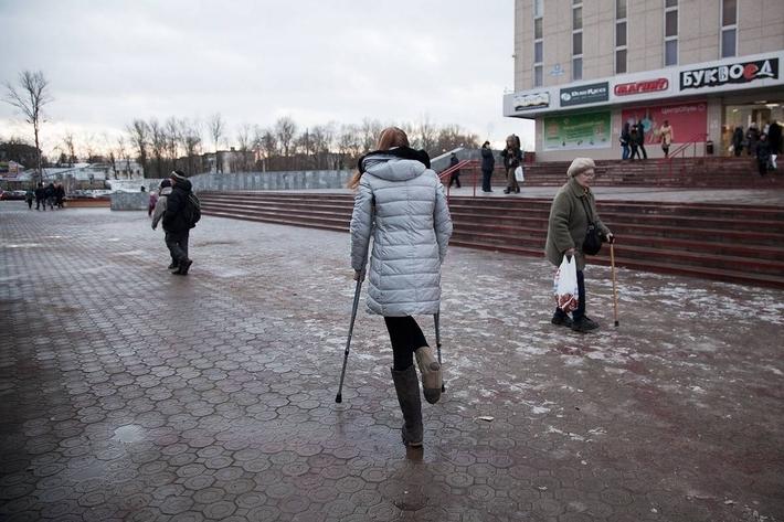 Одной ногой в раю: история блогера, пережившего ампутацию | 473x710